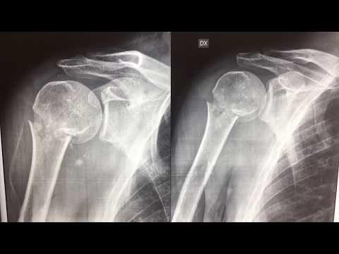 Dolore nella osteoartrite delle articolazioni