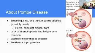 2021 MDA Engage PT, Exercise and Pompe Disease
