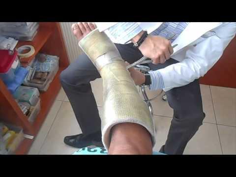 Osteocondroza preparatelor coloanei lombare