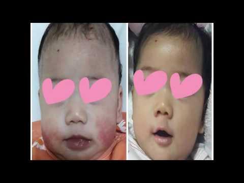 Fufaev โรคสะเก็ดเงินจีน