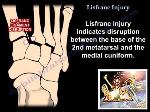 Cosa fare quando finger joint lesioni