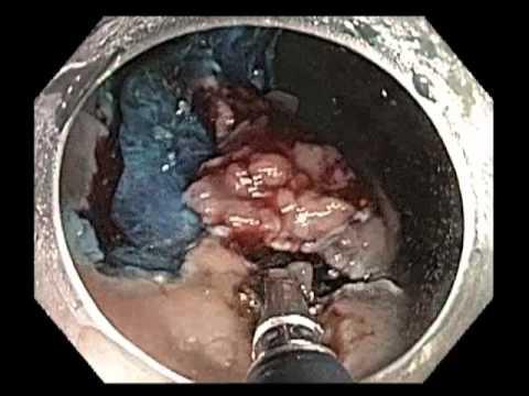 Olbrzymia zmiana w odbycie - szerokie endoskopowe wycięcie śluzówki