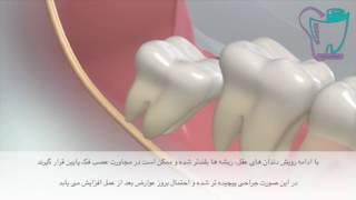 جراحی دندان عقل | سیمادنت