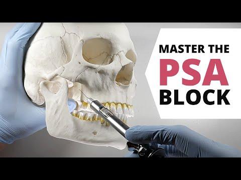 HOW TO DO A POSTERIOR SUPERIOR ALVEOLAR (PSA) NERVE BLOCK