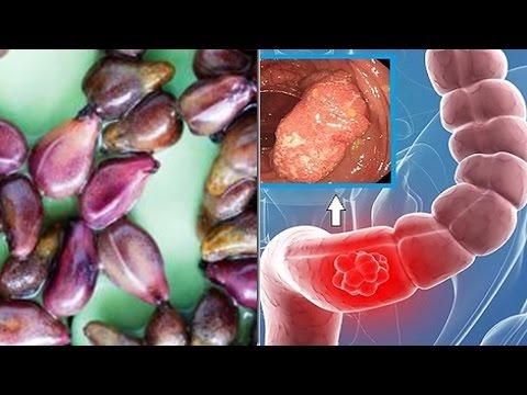 Hipertensión Kobalava