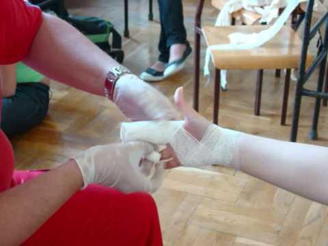 Wzdłużna deformacja stóp u dzieci