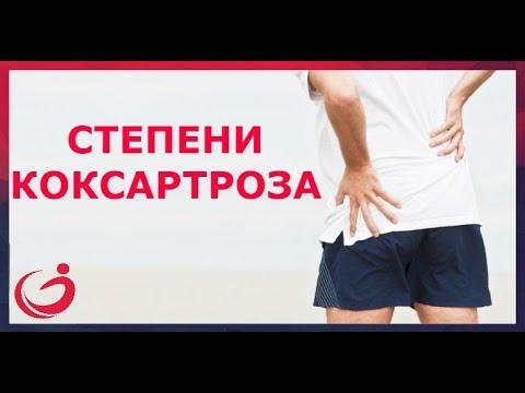 A térd radiológiai tüneteinek ízületi gyulladása