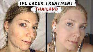 Acne in Thailand | Cheap IPL REVIEW  (What happened + how to clear skin)