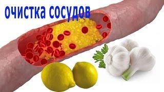 ★Как  очистить сосуды от ХОЛЕСТЕРИНА. 4 рецепта ОЧИЩЕНИЯ СОСУДОВ чесноком и лимоном.