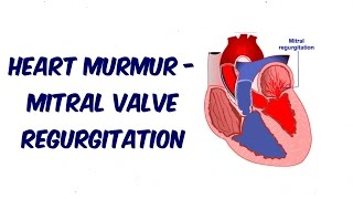 Mitral Regurgitation - Auscultation Sound