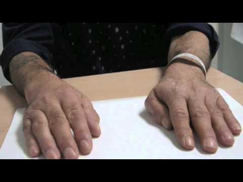 Cura di ernia di spina dorsale di una fotografia