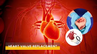 Video Replacement of Heart Valves