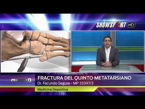Cremă de artroză la șold