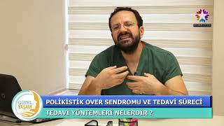 OP DR ÇAĞDAŞ ASLAN POLİKİSTİK OVER SENDROMU VE TEDAVİ YÖNTEMLERİ