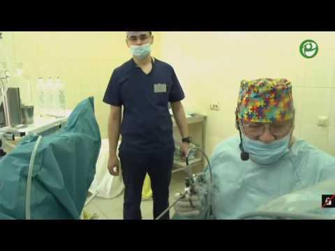 Гистологическая диагностика предстательной железы