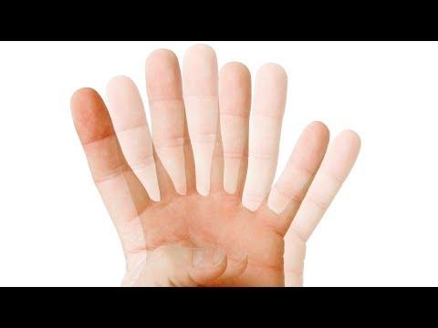 Нормальное глазное давление в 70 лет