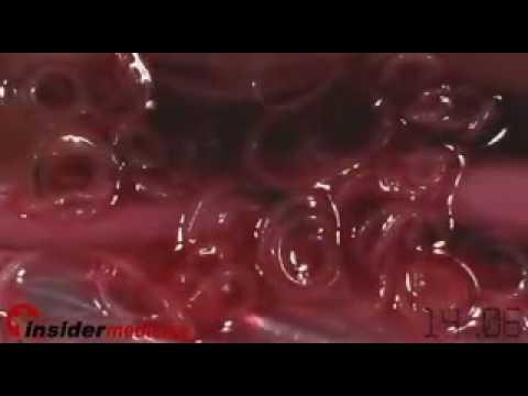 Sinonasal inverted papilloma mri