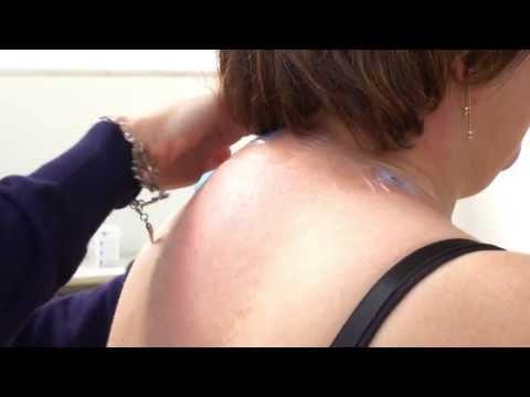 Equistasi® in the treatment of Cervicalgia