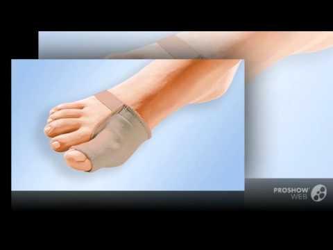 Шишки на суставе большого пальца ноги