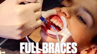 GETTING BRACES FOR THE FIRST TIME | TOP AND BOTTOM BRACES PUT ON WITH EXPANDER