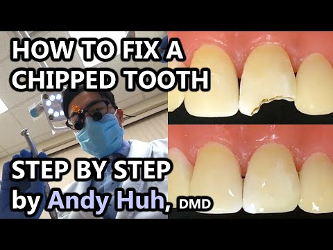How to fix a chipped/broken tooth, dental bonding, composite Pasta Evergreen Dental, Billerica, MA