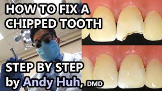 How to fix a chipped/broken tooth, dental bonding, composite Pasta Evergreen Dental, Billerica, MA