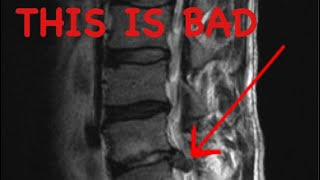 How to Read a Spine MRI