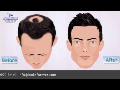 Mono Filament Human Hair Skin/Toupee/Patch