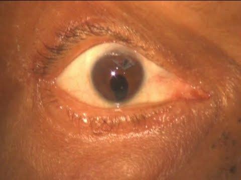 Szenilis látás az