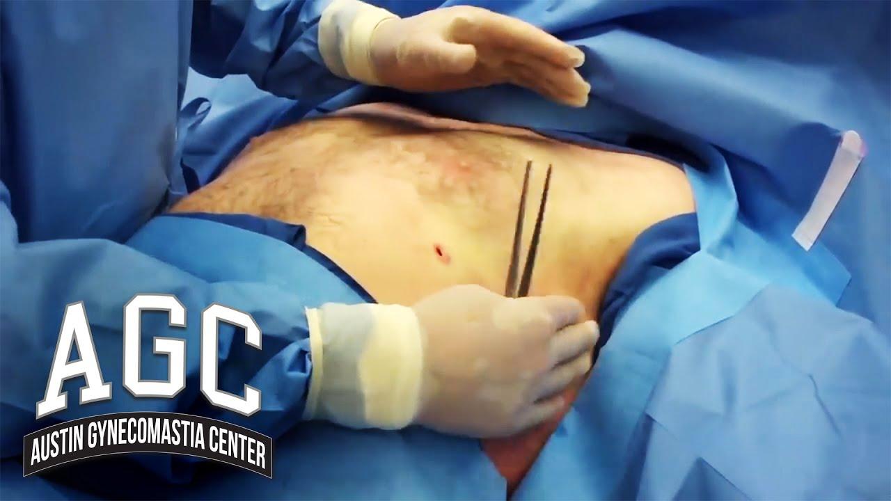 Gynecomastia Video: Chest Contouring During Gynecomastia Treatment