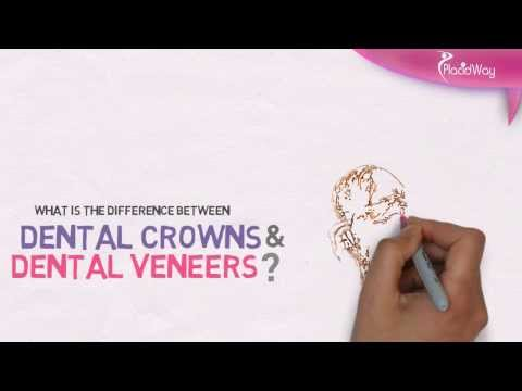 The-Difference-Between-Dental-Crowns-and-Veneers-Treatments