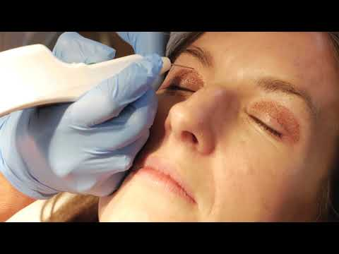 Non surgical blepharoplasty with PLEXR
