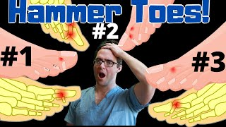 Claw Toe & Hammer Toe Treatment [Straighten Your Toes] NO SURGERY!!!