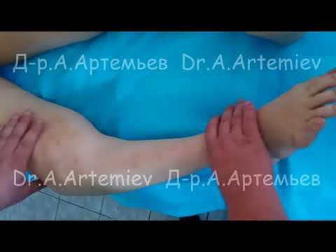 Тянущие боли в пояснице со спины