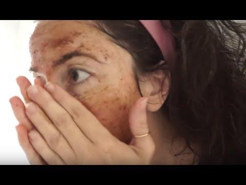 Decolorazione di pelle nel campo di bikini