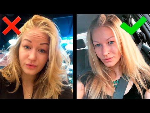 Подтяжка лица в косметологии