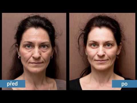 Smluvní učeň suisse proti stárnutí