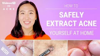 Proper Acne Extraction Steps Without Leaving a Scar! | Wishtrend TV vs ACNE (Feat. Beauty Within)