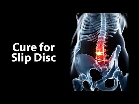 Deep Relief-Salbe mit Osteochondrose