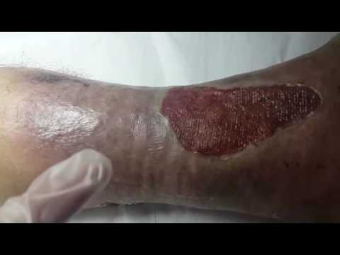 Les exercices pour les pieds à la varicosité