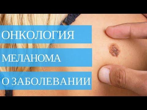 МЕЛАНОМА ➤ рак кожи🏥 Симптомы, диагностика лечение!