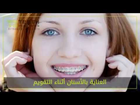 Teeth Movers Orthodontic Center