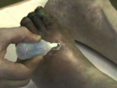 Операция при гангрене пальцев стопы.mp4