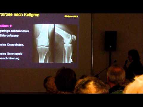 Osteochondrose der Halswirbelsäule Symptome