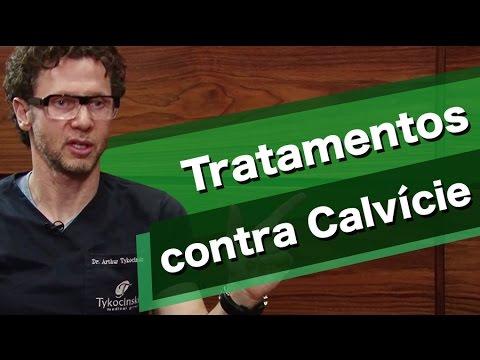 Quais os tratamentos contra a calvicie?