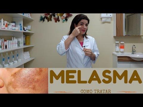 Como tratar a Melasma