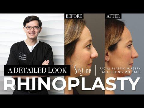 Rhinoplasty Pittsburgh
