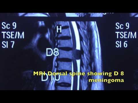 Mal di sinistra dà parte bassa della schiena nello stomaco