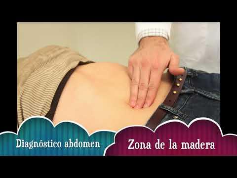 Eczema venoso Wikipedia
