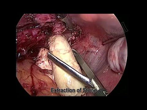 Come determinare il video della prostata